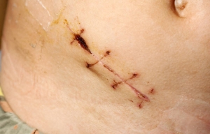 Scars (hypertrophic, hypersensitive, painful, burn scars, mastectomy scars)